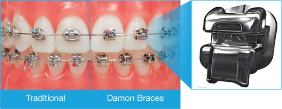 Model of teeth wearing Damon Braces compared to traditional braces, from orthodontist office in Salem, OR.